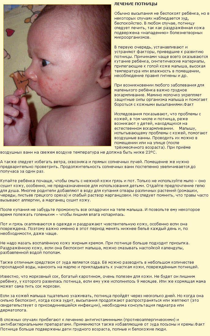 фото и симптомы потницы у детей