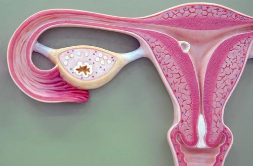 Влияние миомы матки на беременность