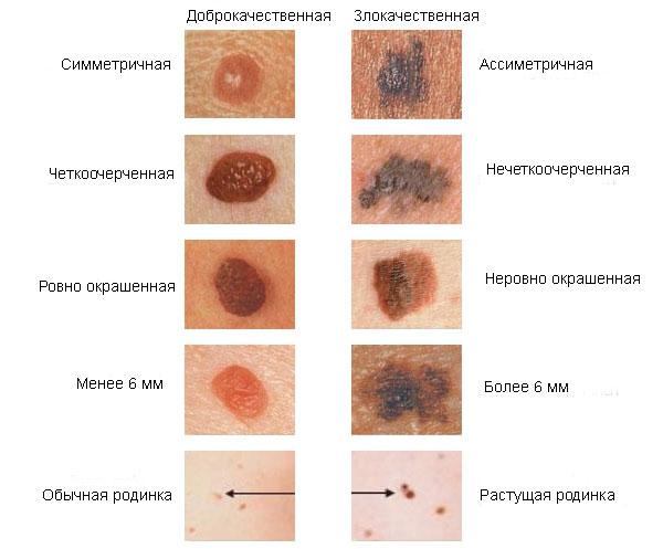 злокачественное новообразование кожи